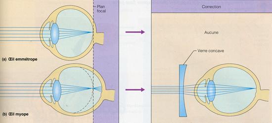 4efc301d84a57b Depuis quelque temps, on peut traiter la myopie au moyen de la kératotomie  radiaire. L intervention, brève et indolore, consiste à pratiquer un  certain ...